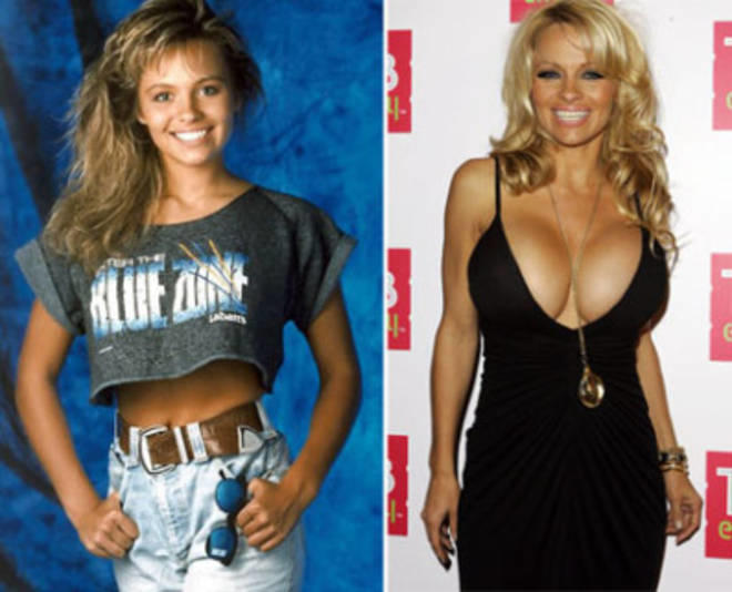 20140418_67799_pamela-anderson-plastic-surgery-by-age-40