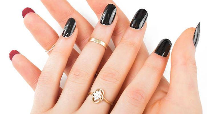 Можно ли грызть ногти на руках и чем это опасно, почему люди грызут ногти